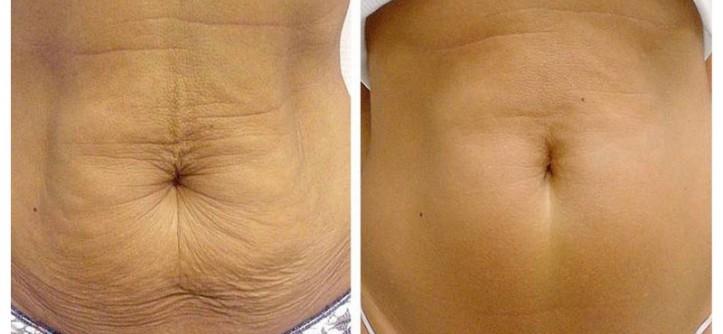 dieta para quemar grasa abdominal sin perder masa muscular