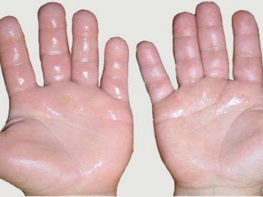 Eliminar sudor de pies y manos
