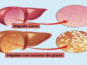 Hígado graso : causas y soluciones