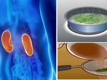 Dolor de riñones : causas y soluciones