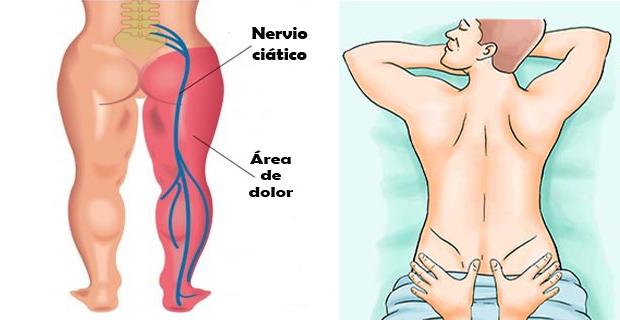 Dolor del nervio ciático - Conecta Salud