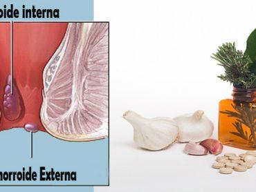 Eliminar hemorroides con productos naturales
