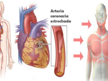 Enfermedades de corazón : señales de aviso