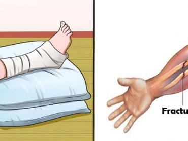 Curar fracturas de huesos rápido
