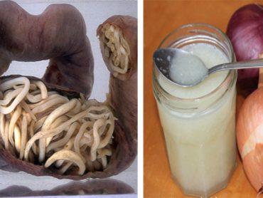 Lombrices intestinales , como eliminarlas