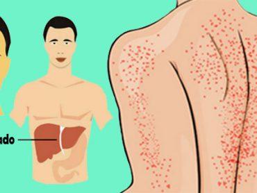 Problemas de hígado : señales de aviso