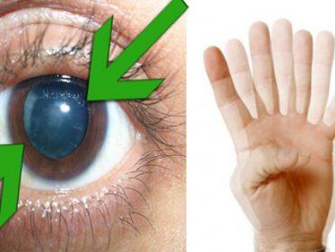 Problemas de visión : señales y signos de aviso