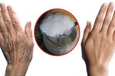 Eliminar arrugas de las manos