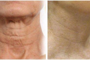 Rejuvenecer piel del cuello