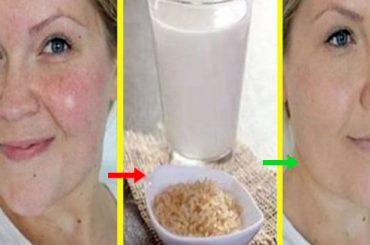 Tratamiento para eliminar arrugas en 1 mes