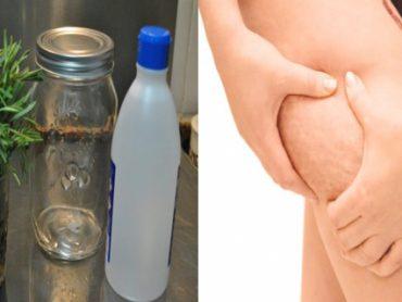 Alcohol de romero para eliminar celulitis