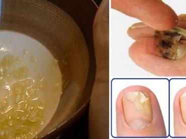 Remedio destroza hongos de las uñas