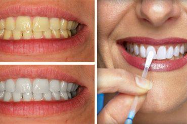 Método casero para blanquear los dientes