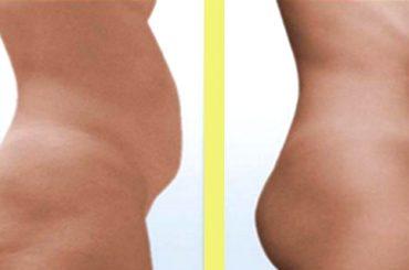 Remedio casero para eliminar grasa abdominal