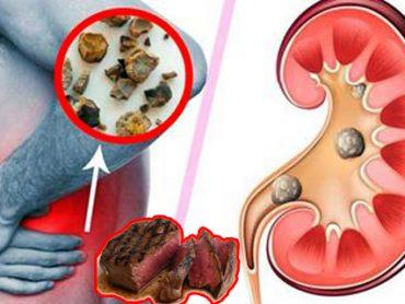 Alimentos que causan piedras en el riñón