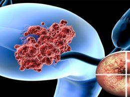 Síntomas cáncer de útero