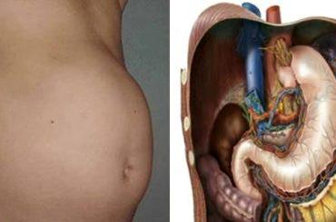 Causas que provocan inflamación de estómago