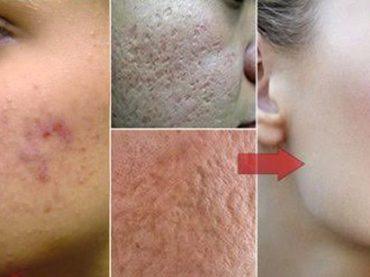 Cómo reducir poros de la cara
