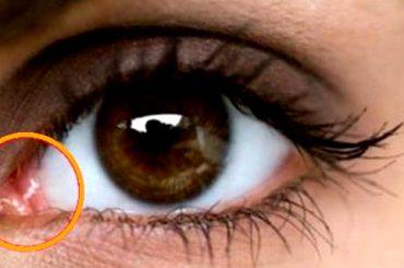 Significado de un bulto en el ojo