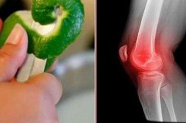 Cáscara de limón para eliminar dolor en articulaciones