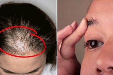 Aceite de ricino para mejorar piel y cabello