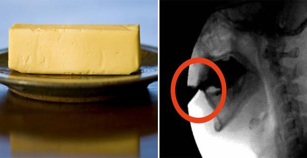 La fotodesaparición de las manchas de pigmento sobre la persona las revocaciones