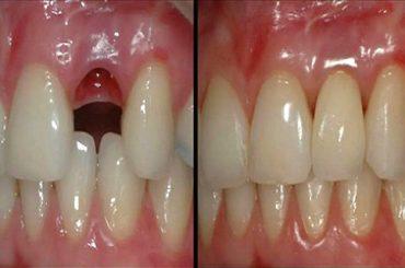 Avances científicos para hacer crecer de nuevo piezas dentales