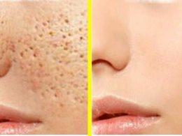Eliminar poros abiertos de la piel en 2 días