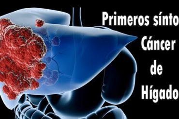 Señales de aviso del cáncer de hígado
