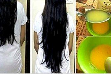 Hacer crecer el cabello combinando 3 ingredientes