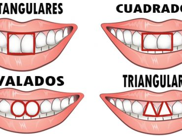 Cómo eres según tu dentadura