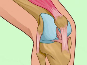 Como curar la rodilla y fortalecer la articulación