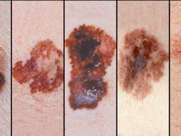 Factores de riesgo para desarrollar un melanoma