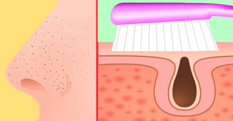 Cómo Remover los Puntos Negros con un Cepillo de Dientes , Pasta Dental y Bicarbonato