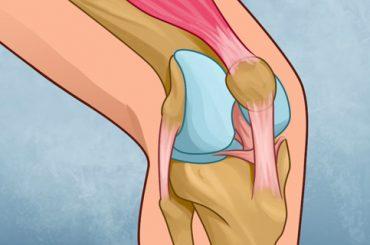 Cómo Curar la Rodilla y Reconstruir con Fuerza la Articulación