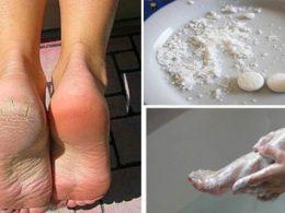 Elimina Callos y Hongos de los Pies con este Eficaz Remedio