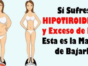 ¿Tienes Hipertiroidismo y Exceso de Peso? Aquí Tienes la Solución
