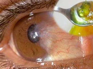 Doctor Ruso revela que solo con tomar una cucharada antes de las comidas aumenta tu visión