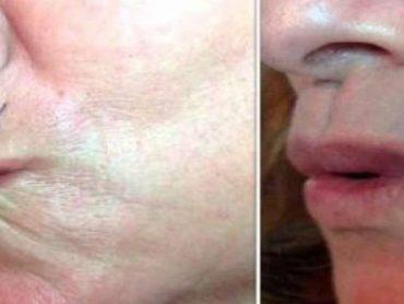 Como preparar una crema casera para eliminar arrugas del contorno de la boca