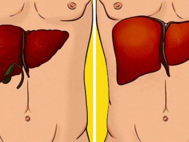 Consuma estos 10 Alimentos para Limpiar el Hígado , Desintoxicarlo y Perder Peso