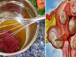 Derrite Miomas y Quistes de Forma Natural Ingiriendo esta Bebida
