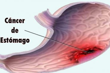 El Cáncer de Estómago es una Enfermedad Muy Silenciosa: Conoce Sus Primeros Síntomas