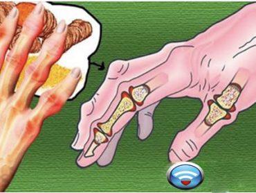 Toda la Vida Visitando al Médico por Culpa de la Artritis y la Solución la Tenía en Casa