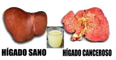 Prueba de biuret en amino acidos para adelgazar